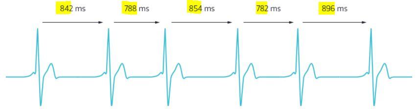 Entscheidend ist die Variabilität des Herzschlages. Je variabler die HRV, also die Herzratenvariabilität desto leistungsfähiger ist der Organismus.