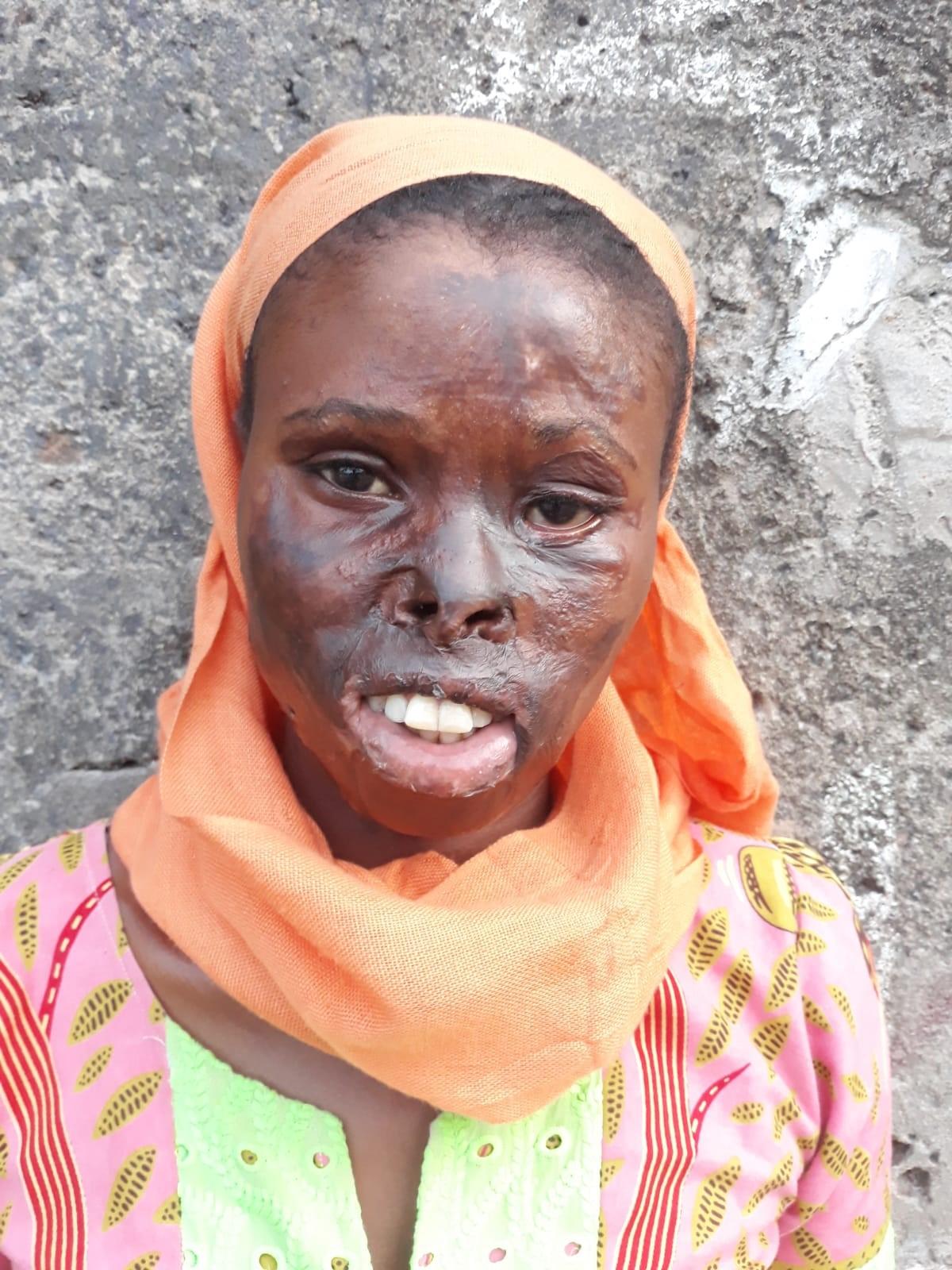 Künftige Patientin mit Verbrennungen im Gesicht