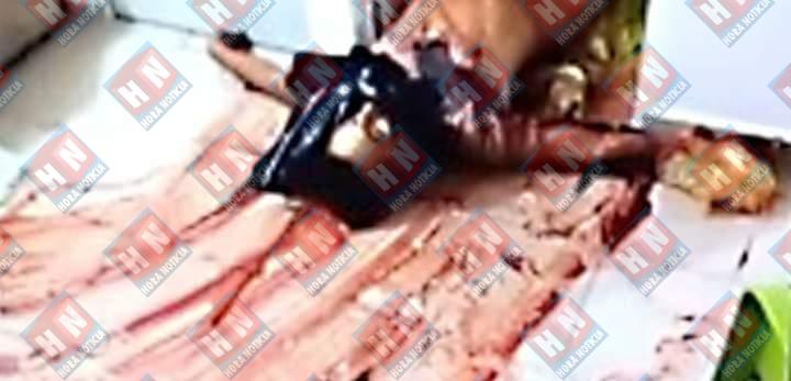 El cuerpo del occiso presentaba múltiples heridas cortantes.