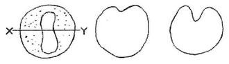 3. zīmējums: Shematiska galvas smadzeņu & muguras smadzeņu veidošanās. A: Rievas uz šūnu sfēras virsmas veidošanās, skats no rievas augšas. B: X-Y griezums, lai parādītu šūnu ārējo slāni, kas krokojas uz iekšu. C: Krokas padziļinājums.