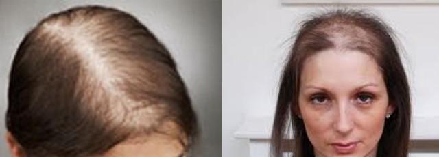 Народных средств от выпадения волос