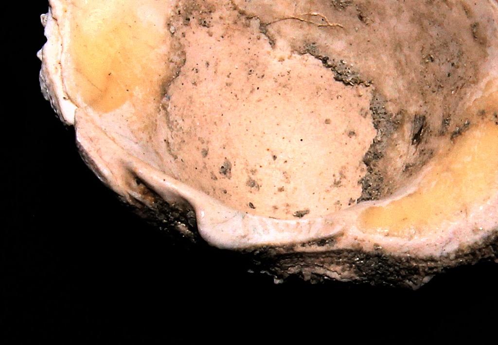 Chama gryphoides dal torrente Stirone: dettaglio della cerniera