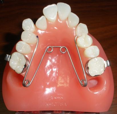ストレートテクニックによる「非抜歯治療」