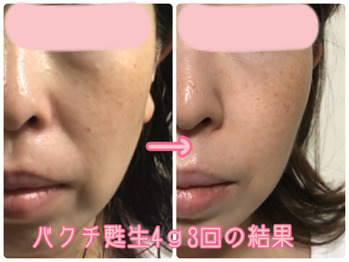 岐阜県多治見市肌改善専門店リトハピですニキビ・毛穴・たるみ・シミ・しわ・赤み・敏感肌・くすみ・痩身化粧品代理店様募集中です