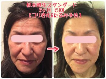 岐阜県多治見市の肌改善専門店リトハピですしわたるみニキビ毛穴でお悩みの方化粧品代理店様募集中です