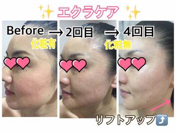 岐阜県多治見市肌改善専門店リトハピですしわシミたるみニキビ毛穴乾燥でお悩みの方化粧品代理店様募集中です