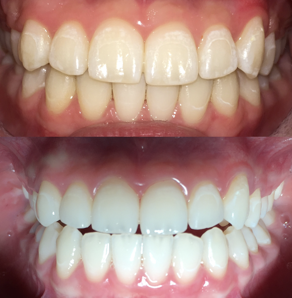 10) BEFORE & AFTER | Whitening