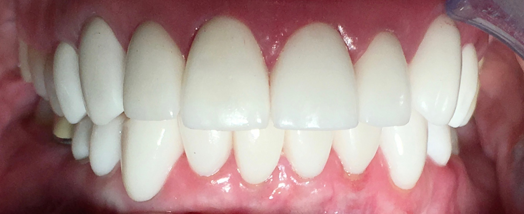 After | Cosmetic veneers and crowns