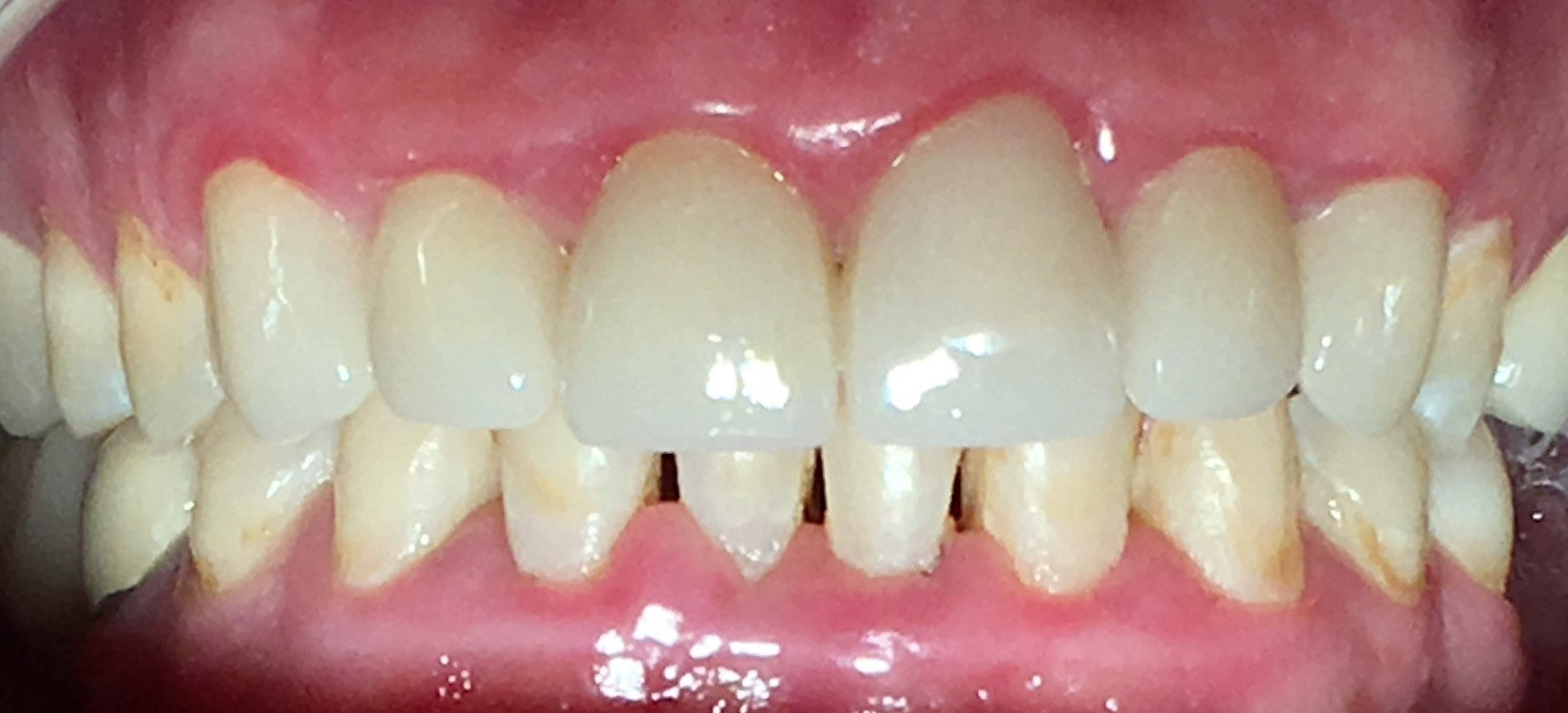 AFTER | Full mouth crown and bridge case