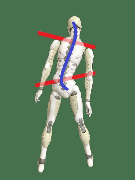 湾曲が2ヶ所あると骨盤と肩の傾きが逆になる