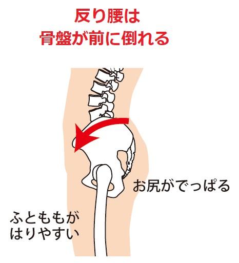 反り腰は骨盤が前に倒れる