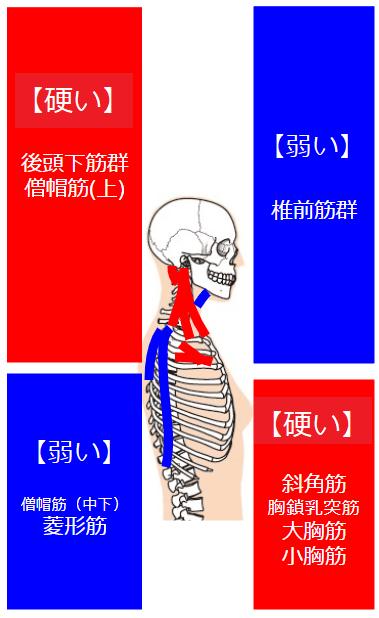 硬い筋肉と弱い筋肉が交差状