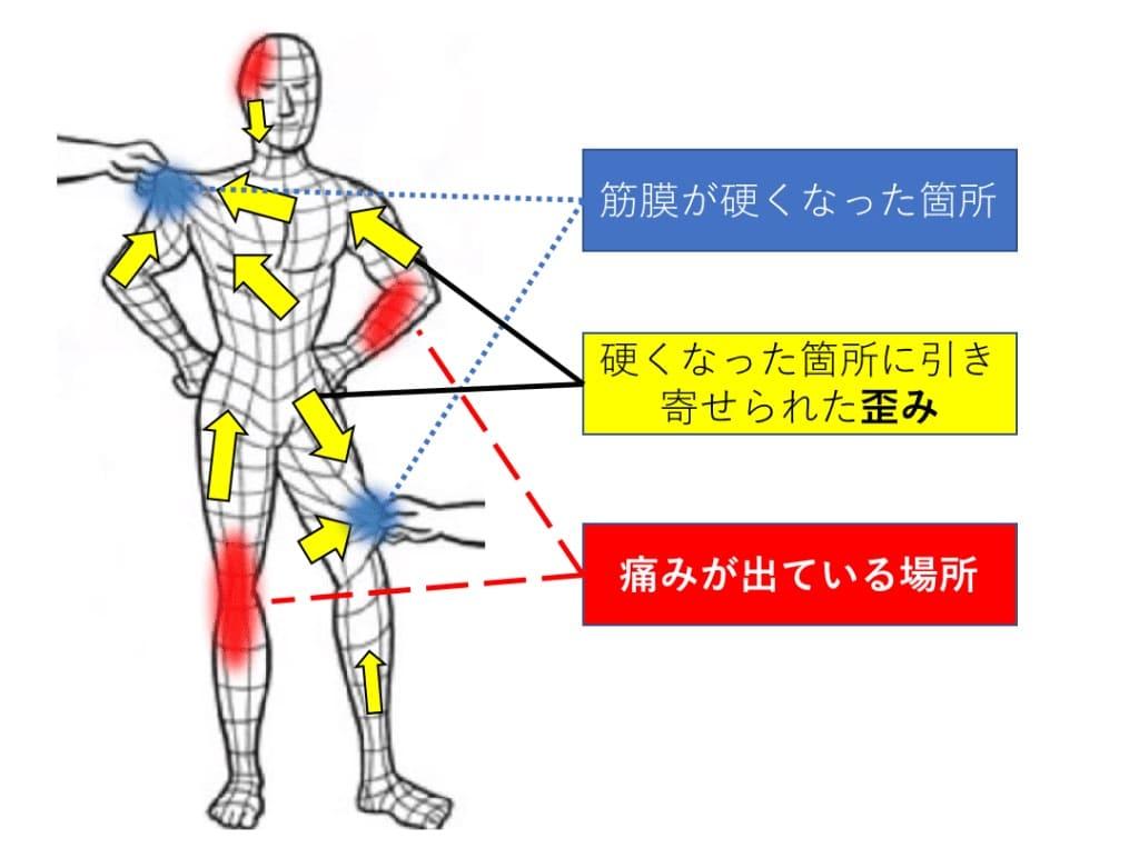 筋膜リリースって何