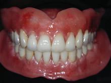 審美総義歯