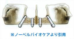 インプラント構造