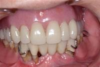 総入れ歯をインプラントで固定させた症例 術前