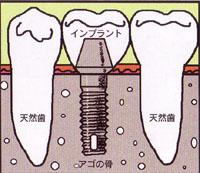 インプラントに支えられた歯の模式図