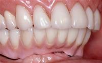 上顎は入れ歯、下顎はインプラント