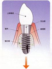 チタン製のインプラントとあごの骨が一体化して歯が復元できます。