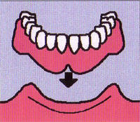 歯が全部抜けた場合(全部床義歯=総入歯)