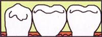 インプラントした歯の口の中で見える部分