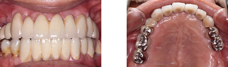入れ歯をインプラントに換えて審美性と機能性を回復した症例