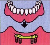 歯が全部抜けた場合