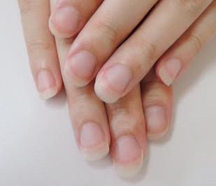 初回ご来店時・扇形の爪にお悩みでした。