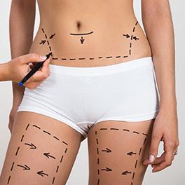 Liposukcja-zabieg