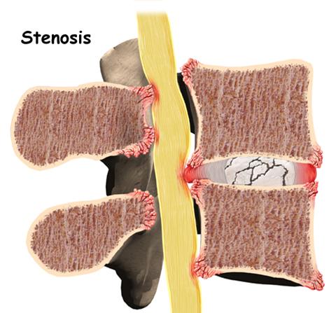 腰部脊柱管狭窄症の症状と原因