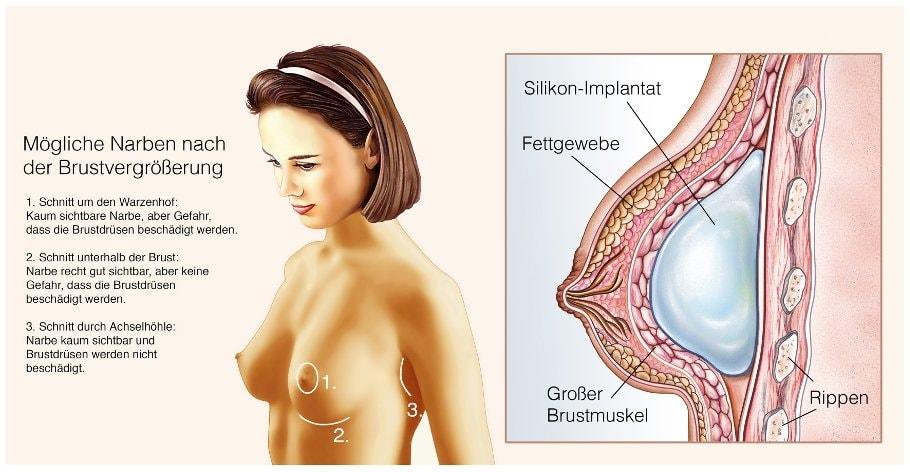 Mögliche Narben nach der Brustvergrößerung