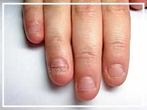 Nagelkauer, Nagelbeißer, Nagelstudio Reutlingen, Reutlingen, Nagelbeißerbehandlung