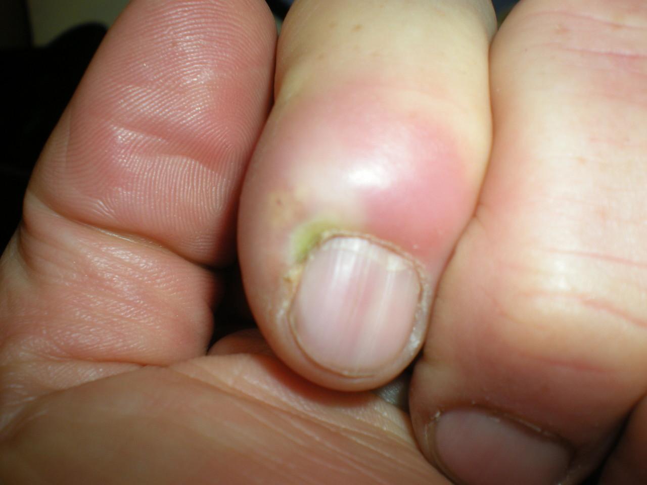 der Finger wurde nach 2 x 600er IBU auf einer Yakweide operiert