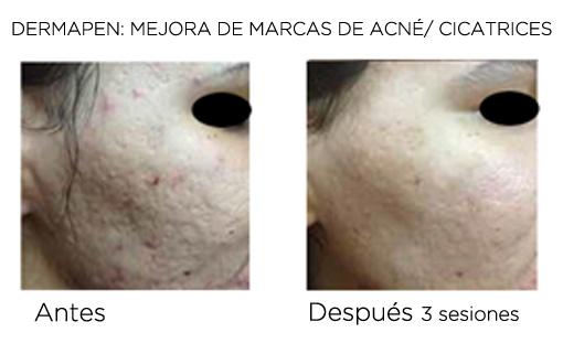 eliminar acné resultados