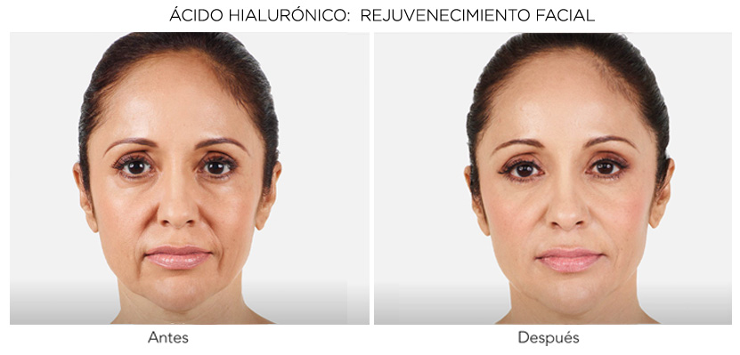 acido hialuronico antes y despues