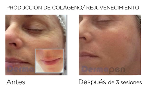 dermapen antes y despues