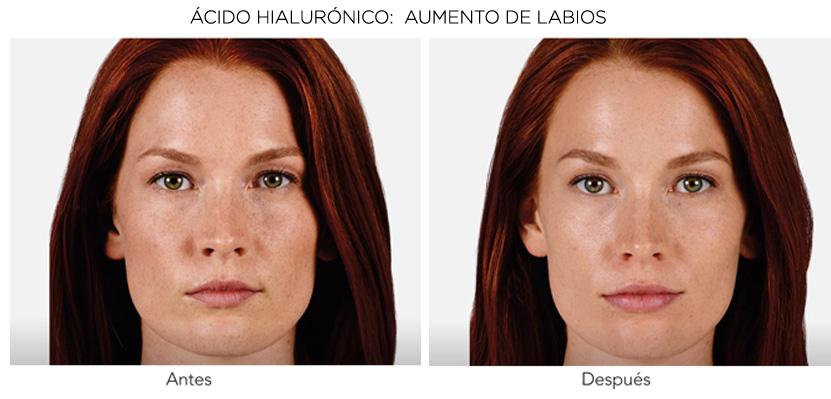 Aumento de labios resultados