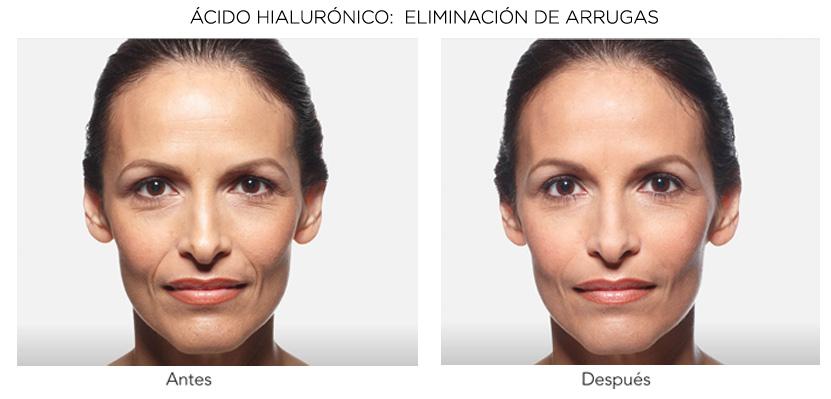 acido hialuronico resultados