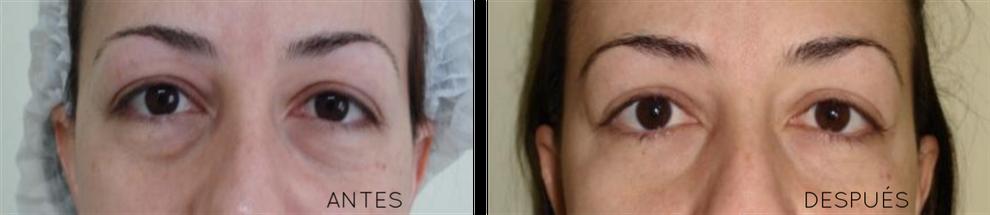 eliminar ojeras caso real antes y despues
