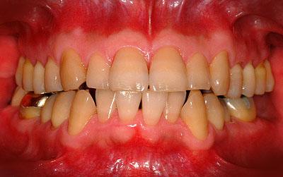 ↑歯列矯正で正中線・ミッドラインは合うべきか?↑