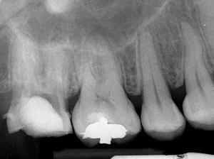 根尖病巣,前歯のレントゲン,歯の神経の治療,痛い歯,画像,完治