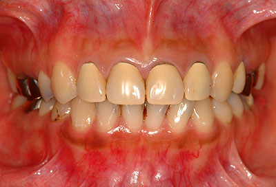 ↑審美歯科の注意点・神経の治療↑