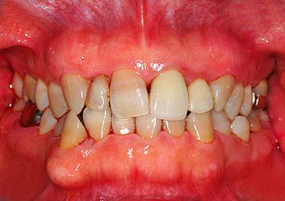 画像: 歯並びの悪い前歯がメタボンの30代の主婦のProphy直後の様子