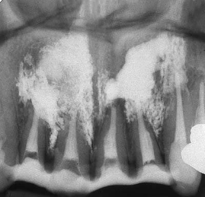 審美歯科,セラミック矯正,スピードセラミック治療,デメリット,gvbdo,神経の治療,レントゲン