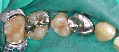 画像: 虫歯で神経の治療が必要になった歯1