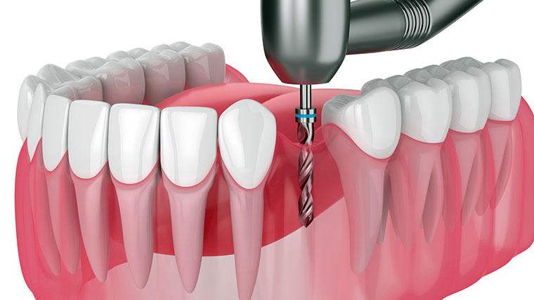 画像: ドリルで歯槽骨に穴を開けるインプラントは危険な治療