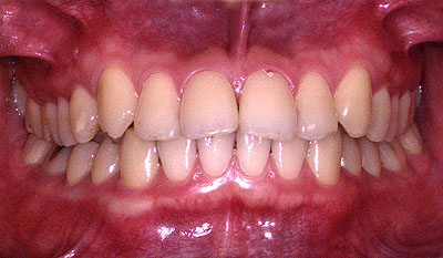 顎関節症でうつ病引きこもり不登校の大学生の正面から見た歯並び