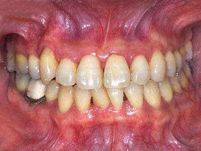 画像: 再矯正が必要な歯列矯正失敗の症例