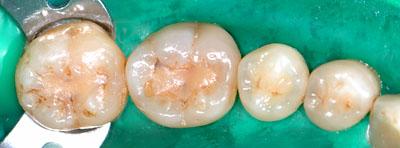 画像: ラバーダムを装着し虫歯の再治療をAmalg amで行っている様子