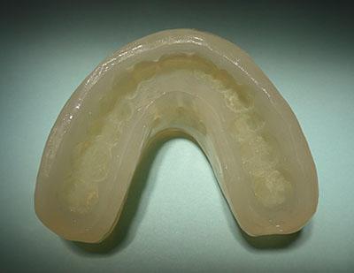 画像: 側湾症で悩む八重歯で開咬の女子中学生高校生の歯列矯正保定装置 DP Dynamic Positioner